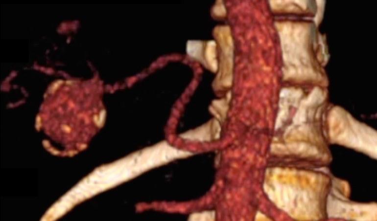 Diagnóstico e Tratamento de Aneurisma de Artéria Visceral