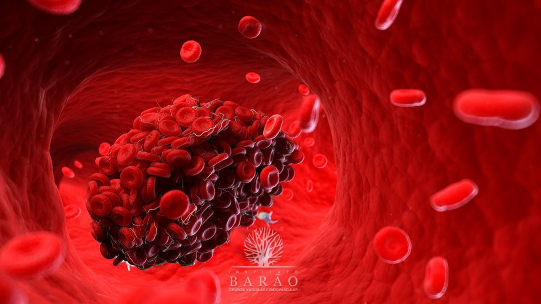 Tratamentos Para Trombose Venosa Profunda