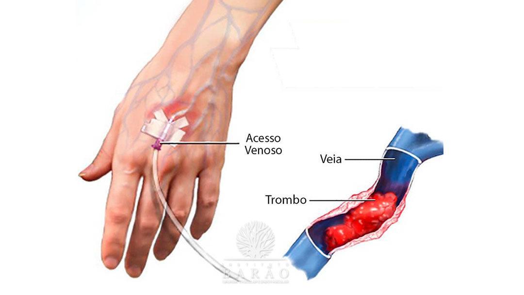 Opções de Tratamentos para Flebite ou Tromboflebite