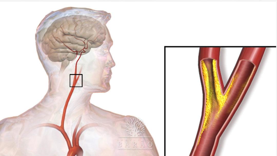 Saiba o que é a Doença Carotídea e Conheça as Opções de Tratamentos