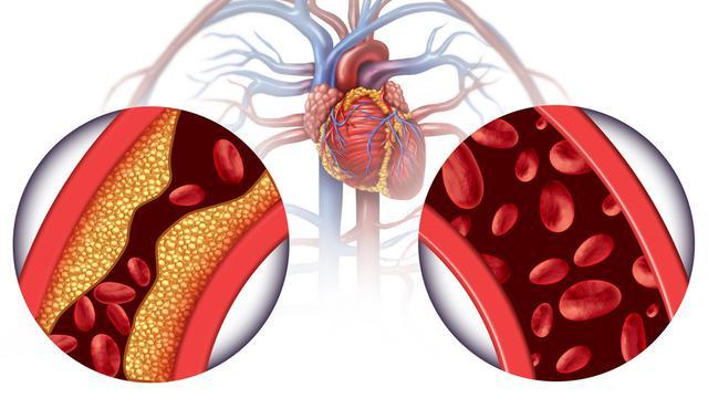 Colesterol e Saúde Vascular