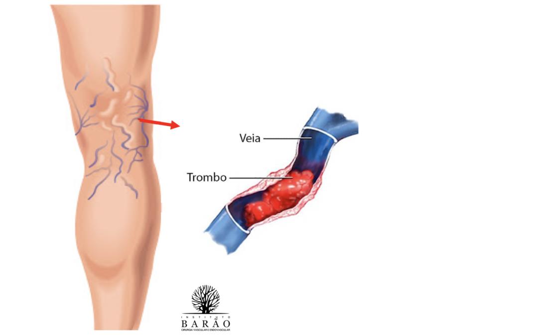 Flebite ou Tromboflebite